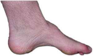 The foot of a person with CMT. The lack of muscle, a high arch, and claw toes are signs of this genetic disease.