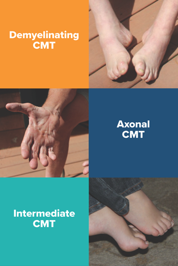Three Forms of CMT
